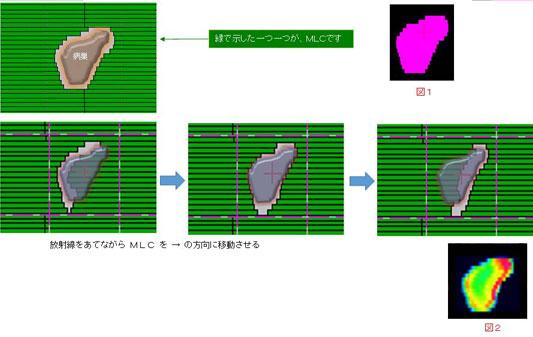 強度変調放射線治療の説明図