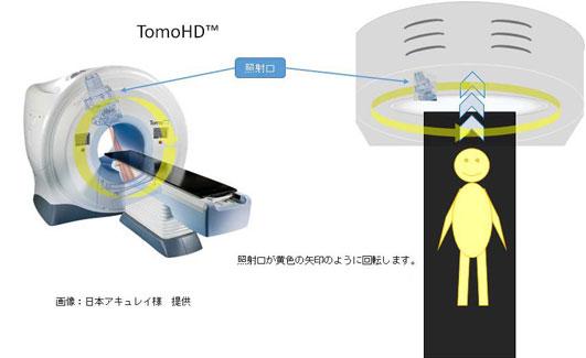 トモセラピーの説明図